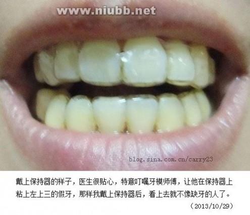 牙套保持器 摘牙套,戴保持器