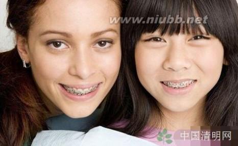 牙套要带多久 牙套要戴多久