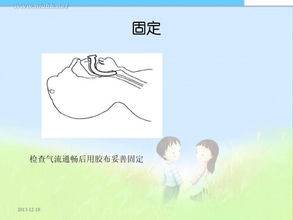 咽 口咽通气管的使用技术-龚婕